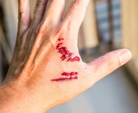 A hand with a bite from a dog bite, possibly displaying clinical signs of rabies